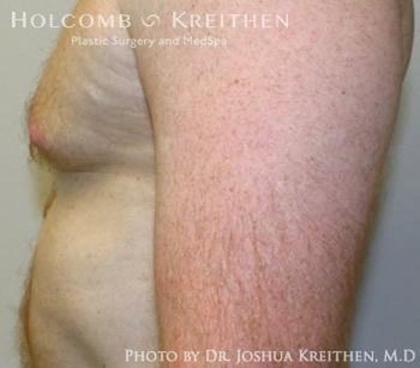 Liposuction Gallery - Patient 6236530 - Image 5