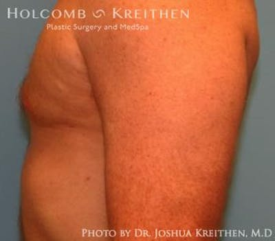 Liposuction Gallery - Patient 6236530 - Image 6