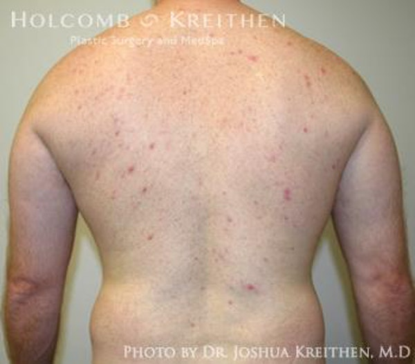 Liposuction Gallery - Patient 6236530 - Image 7