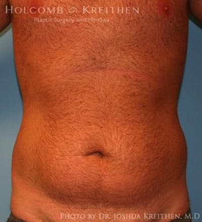 Liposuction Gallery - Patient 6236534 - Image 9