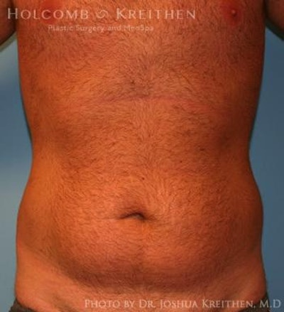 Liposuction Gallery - Patient 6236534 - Image 1