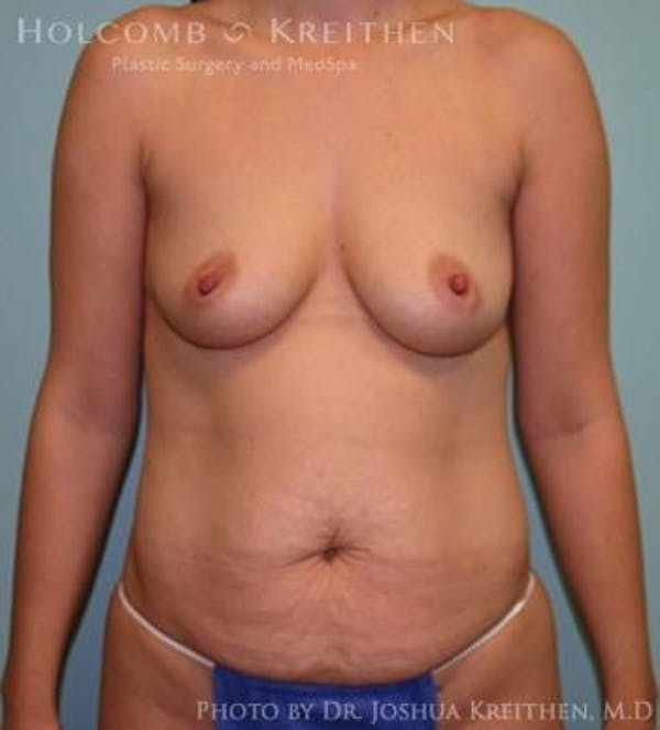 Mommy Makeover Gallery - Patient 6236532 - Image 1