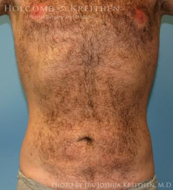 Liposuction Gallery - Patient 6236534 - Image 2