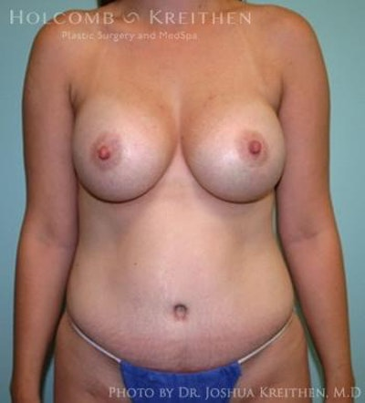 Mommy Makeover Gallery - Patient 6236532 - Image 2