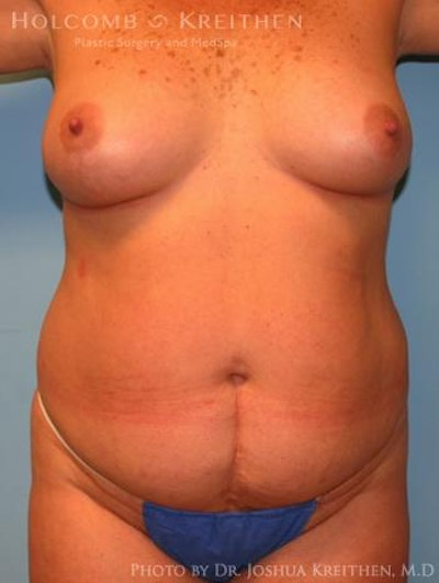 Mommy Makeover Gallery - Patient 6236536 - Image 1