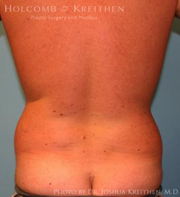 Liposuction Gallery - Patient 6236534 - Image 5