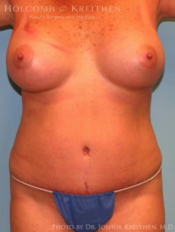 Mommy Makeover Gallery - Patient 6236536 - Image 2