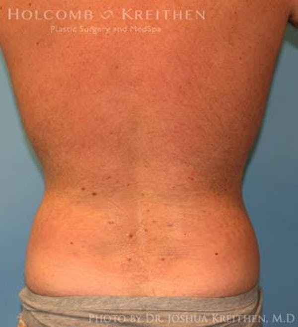Liposuction Gallery - Patient 6236534 - Image 6