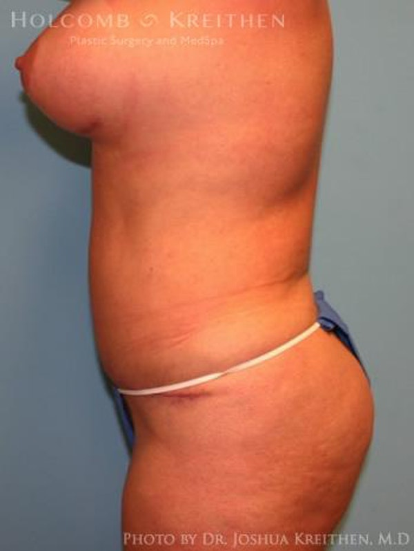Mommy Makeover Gallery - Patient 6236536 - Image 4