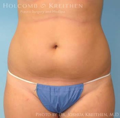 Liposuction Gallery - Patient 6236537 - Image 1