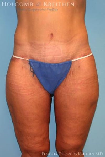 Thigh Lift Gallery - Patient 6236535 - Image 2