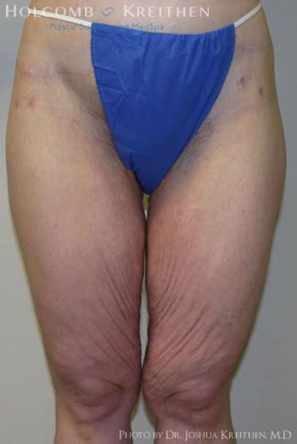 Thigh Lift Gallery - Patient 6236538 - Image 1