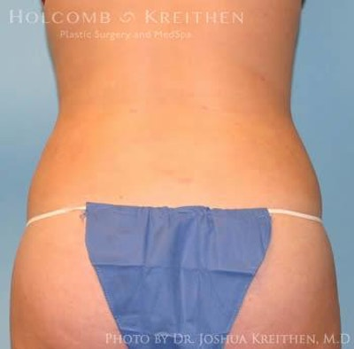 Liposuction Gallery - Patient 6236537 - Image 6