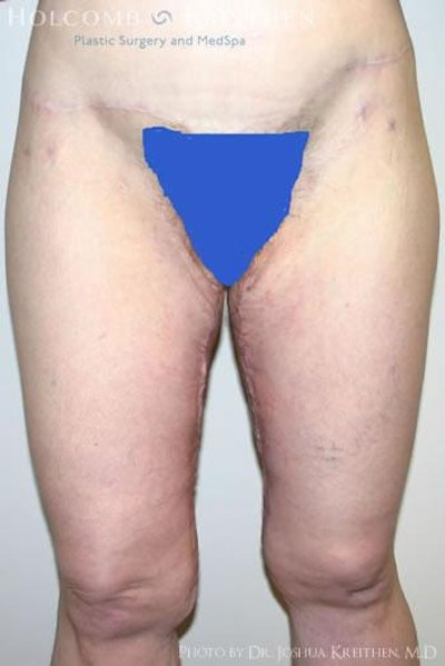 Thigh Lift Gallery - Patient 6236538 - Image 2