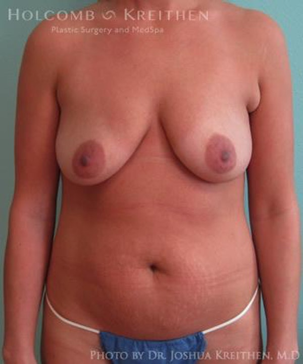 Mommy Makeover Gallery - Patient 6236539 - Image 1