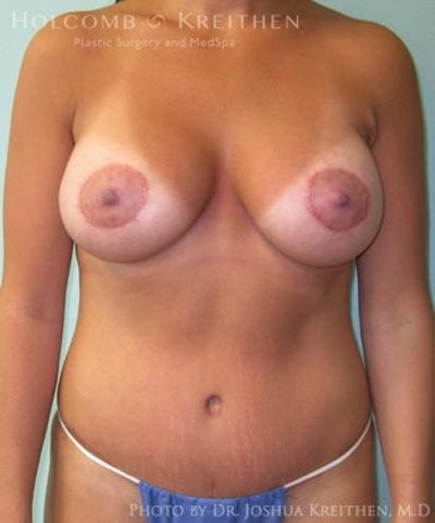 Mommy Makeover Gallery - Patient 6236539 - Image 2