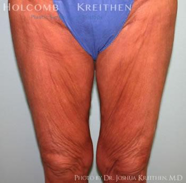 Thigh Lift Gallery - Patient 6236540 - Image 1