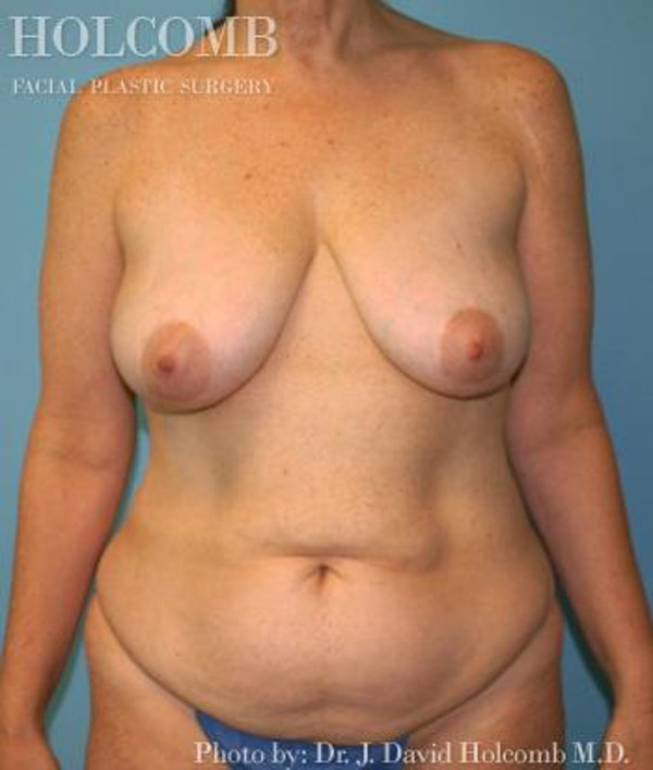 Mommy Makeover Gallery - Patient 6236542 - Image 1
