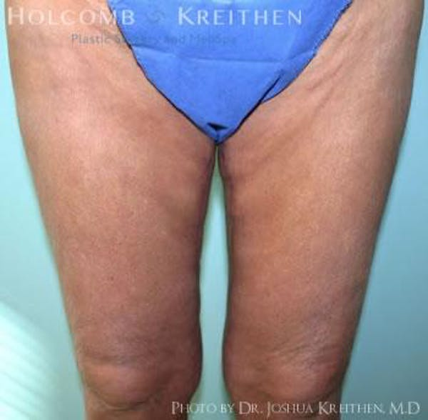 Thigh Lift Gallery - Patient 6236540 - Image 2
