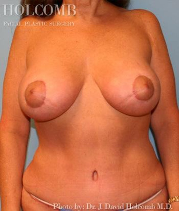 Mommy Makeover Gallery - Patient 6236542 - Image 2