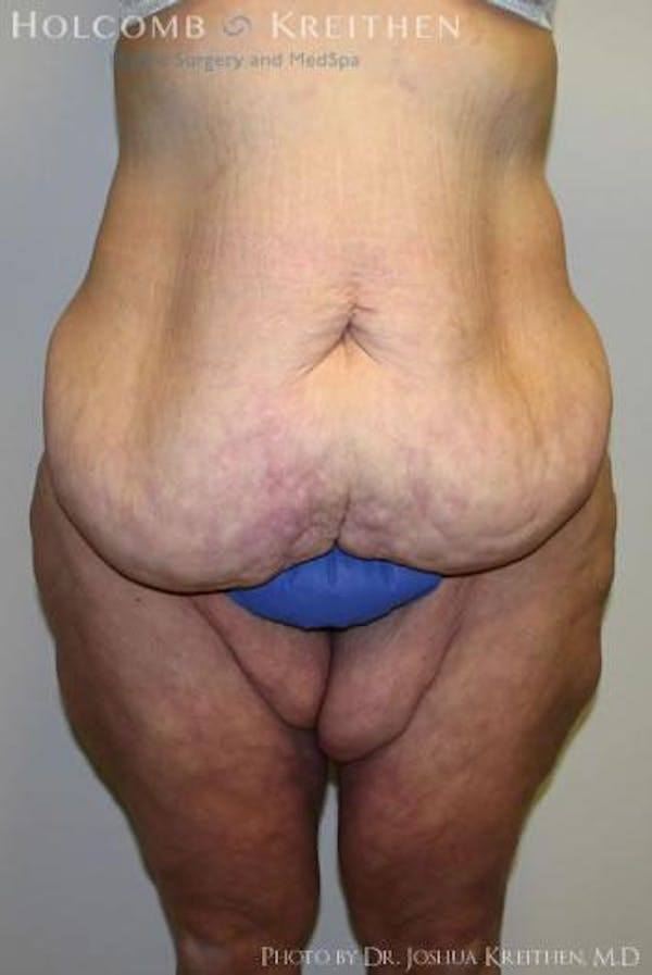 Thigh Lift Gallery - Patient 6236541 - Image 1