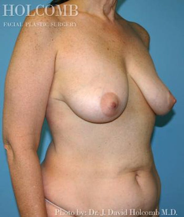 Mommy Makeover Gallery - Patient 6236542 - Image 3