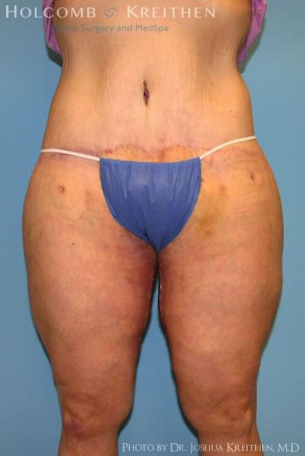 Thigh Lift Gallery - Patient 6236541 - Image 2