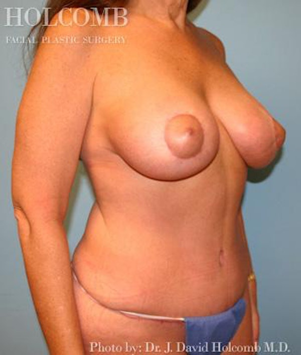 Mommy Makeover Gallery - Patient 6236542 - Image 4
