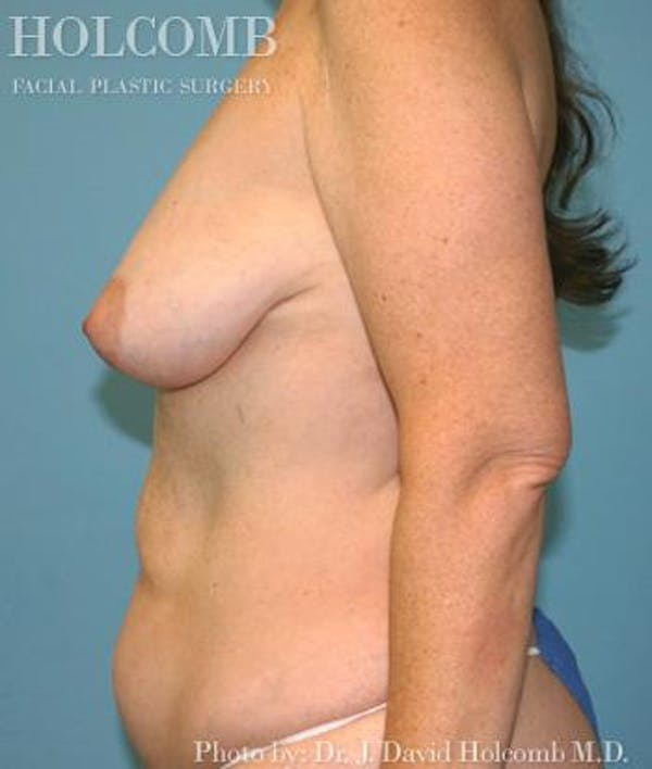 Mommy Makeover Gallery - Patient 6236542 - Image 5