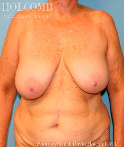 Mommy Makeover Gallery - Patient 6236543 - Image 1