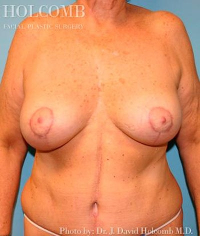 Mommy Makeover Gallery - Patient 6236543 - Image 2