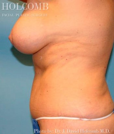 Mommy Makeover Gallery - Patient 6236543 - Image 4