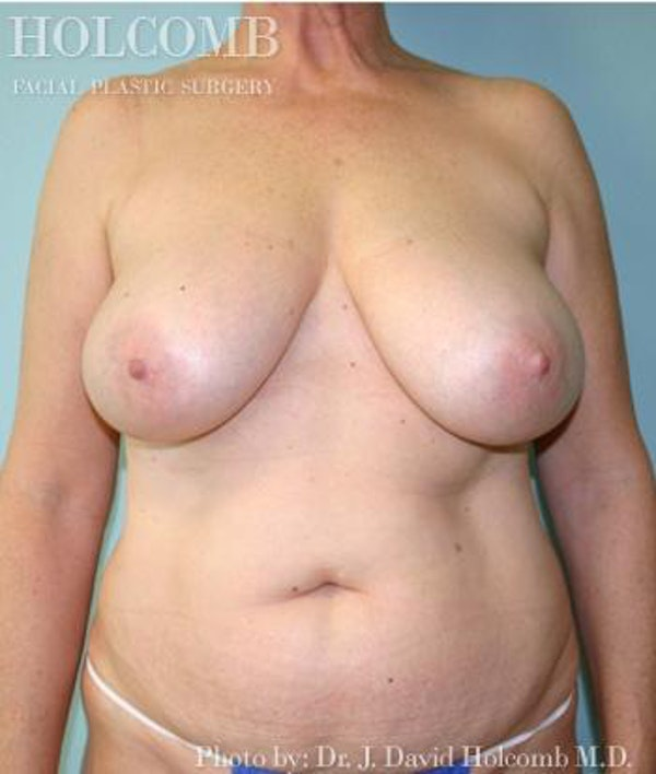 Mommy Makeover Gallery - Patient 6236545 - Image 1