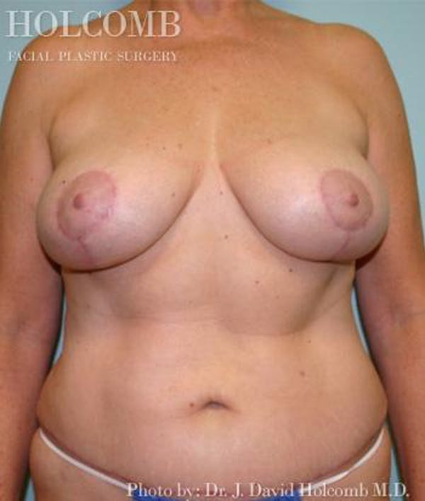 Mommy Makeover Gallery - Patient 6236545 - Image 2