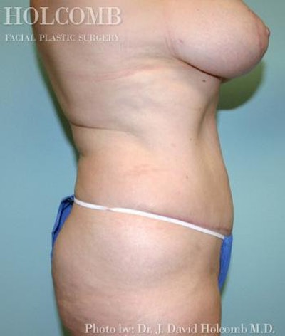 Mommy Makeover Gallery - Patient 6236545 - Image 4