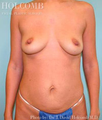 Mommy Makeover Gallery - Patient 6236546 - Image 7
