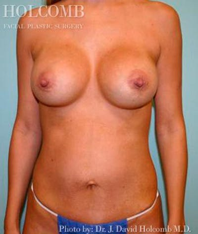 Mommy Makeover Gallery - Patient 6236546 - Image 2