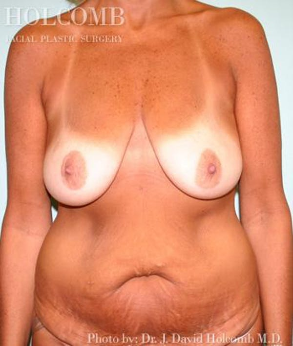 Mommy Makeover Gallery - Patient 6236547 - Image 1