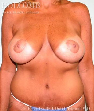 Mommy Makeover Gallery - Patient 6236547 - Image 2
