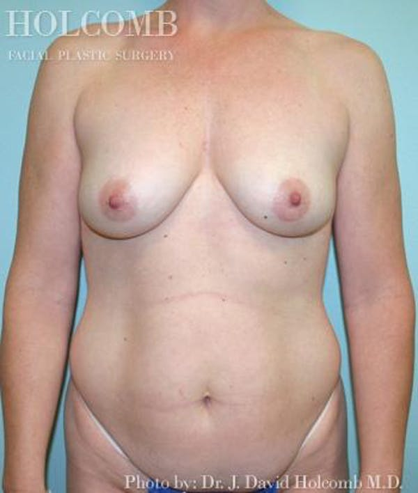 Mommy Makeover Gallery - Patient 6236548 - Image 1