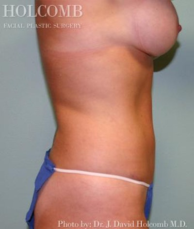 Mommy Makeover Gallery - Patient 6236548 - Image 4