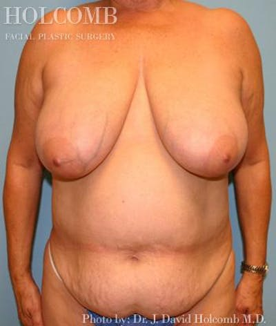 Mommy Makeover Gallery - Patient 6236553 - Image 1