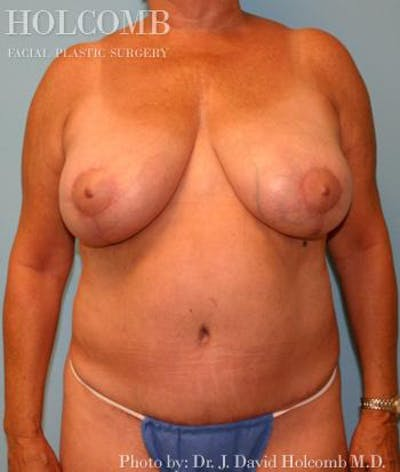 Mommy Makeover Gallery - Patient 6236553 - Image 2