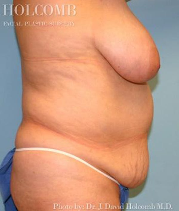 Mommy Makeover Gallery - Patient 6236553 - Image 3