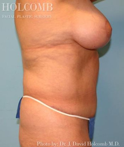 Mommy Makeover Gallery - Patient 6236553 - Image 4