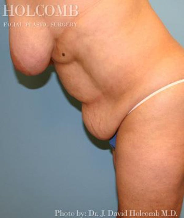 Mommy Makeover Gallery - Patient 6236553 - Image 5