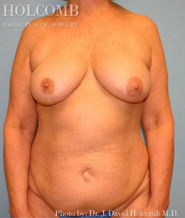 Mommy Makeover Gallery - Patient 6236554 - Image 1