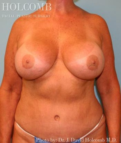 Mommy Makeover Gallery - Patient 6236554 - Image 2