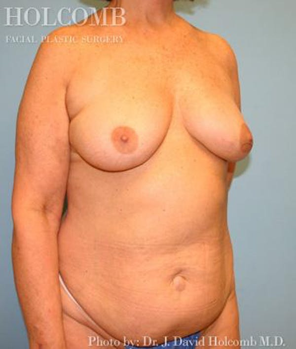 Mommy Makeover Gallery - Patient 6236554 - Image 3