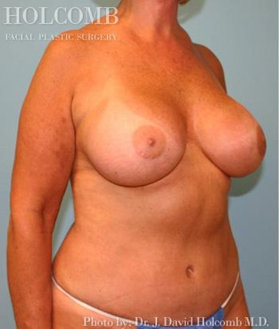 Mommy Makeover Gallery - Patient 6236554 - Image 4